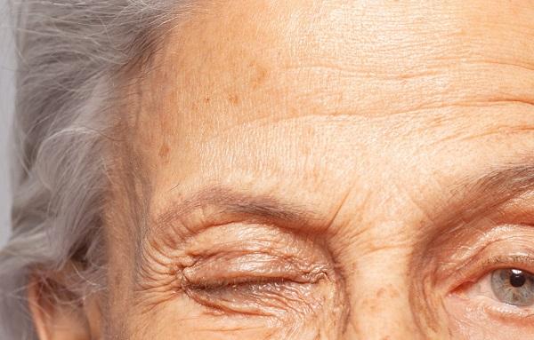 Effets du collagène sur la peau