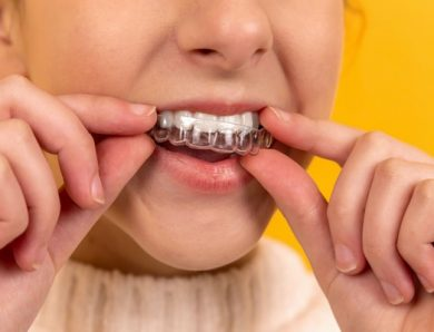 Au secours : mon appareil dentaire céramique jaunit !